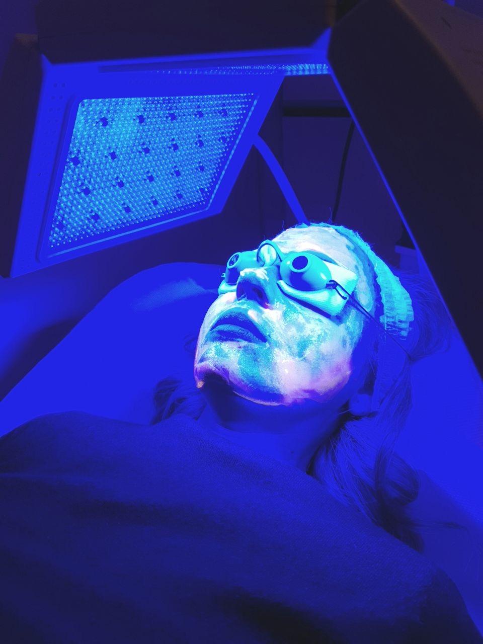 Trattamento viso Kleresca Skin Rejuvenation